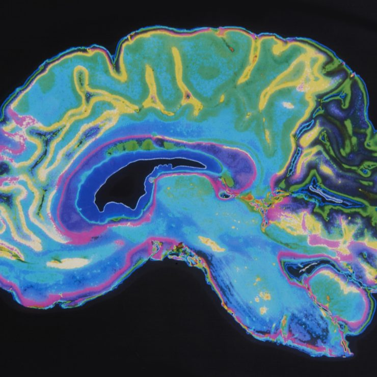 MRI scan of a brain to demonstrate how scientists at the Center are exploring how the brain works through the lens of data.