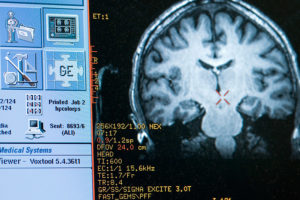 fMRI brain scan from Center for Healthy Minds