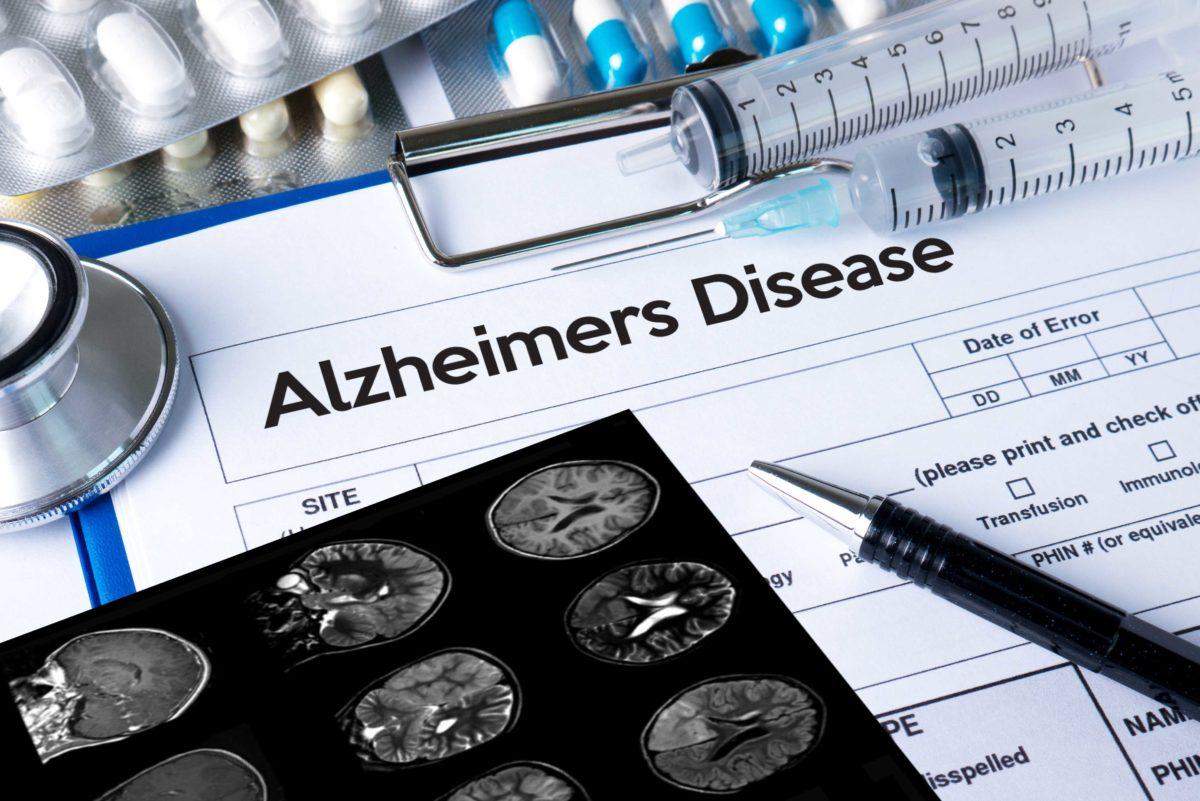 Alzheimers Web