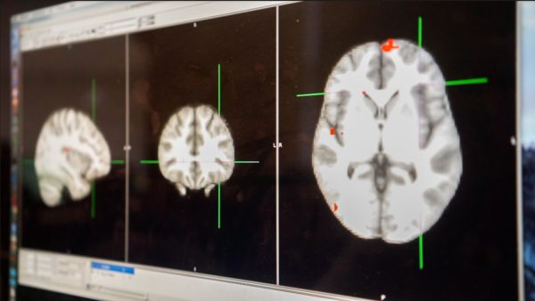 Mina Brain Scans Web