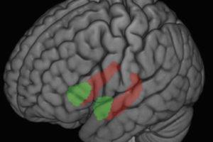 Brain-WEB